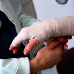 женская рука в гипсе